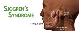 sjogrenssyndrome