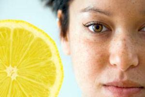 lemon-juice-freckles-1