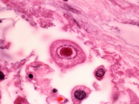 gladden-willis-cytomegalovirus-with-a-large-inclusion-in-the-nucleus-of-lung-cells_i-G-38-3813-SUPIF00Z