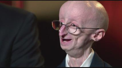 SAM BERNS DIES