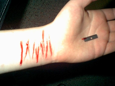 cutting yourself